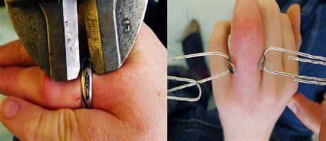 titanium rings tough to crack in emergencies health news