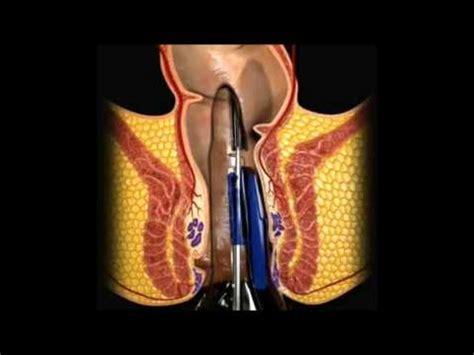 emorroidi interne dolorose dott prof marco rovati emorroidi doovi