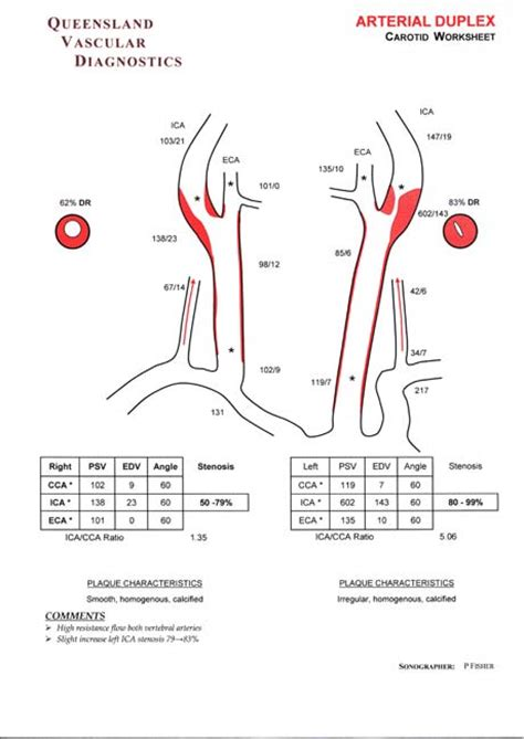 carotid ultrasound report template label skin diagram worksheet label free engine image for