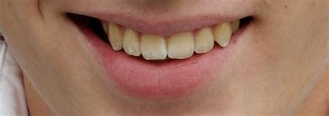 photo  methods  teeth whitening  photoshop