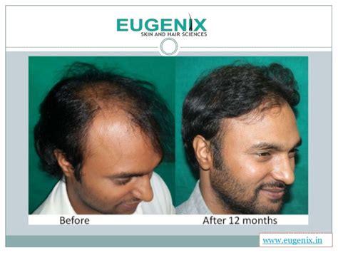 the very best body hair transplant in delhi best hair transplant clinic in delhi ncr