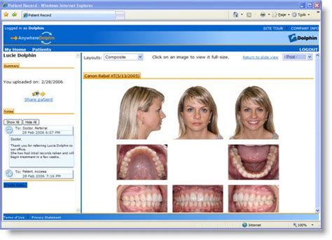 11 Images Of Invisalign Record Template Canbum Net Invisalign Photo Template
