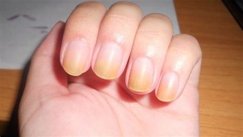 yellow nail beds image gallery discolored fingernails