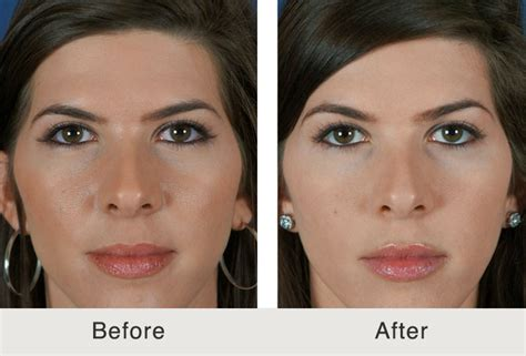 does a chubby face empthasize a forehead what is a non surgical browlift carolina facial plastics