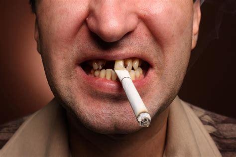 come sbiancare i denti velocemente a casa estrazione di dente giudizio di riccardo