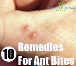 home ant remedy 10 home remedies for ant bites treatments cure