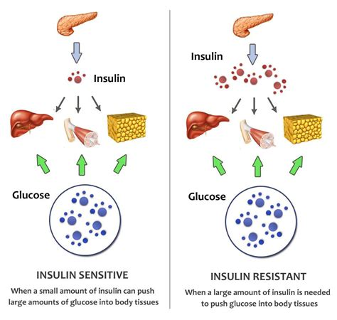 Pdf Insulin Resistance Solution Pre Diabetes Metabolism by Insulin Sensitivity Insulin Resistance Insulin