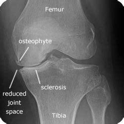 Suplemen Osteoarthritis knee osteoarthritis grading limitations of x rays x
