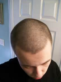 thinning hairin on topofhead post your buzzed images here