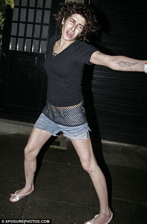 back legs giving out bruise that winehouse displays leg injuries as she hangs out by the