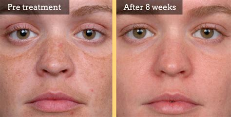 blue light treatment for sun damage skin rejuvenation welwyn skin clinic welwyn clinic