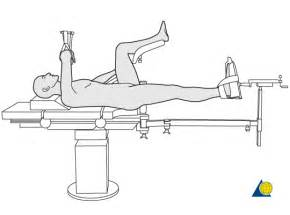 proximal femur preparation supine position fracture