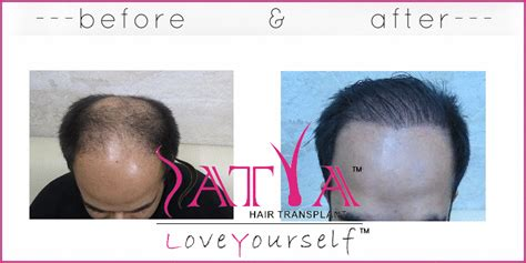 salman synthetic hair synthetic hair transplant nido 1300 grafts