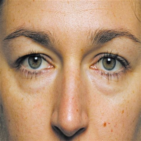 swollen eye home treatment effective home remedies for swollen treatments cure for swollen