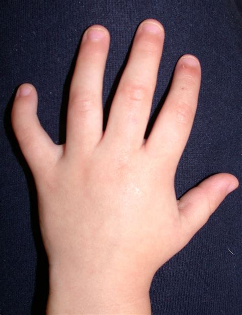 to finger clinodactyly congenital hand and arm differences