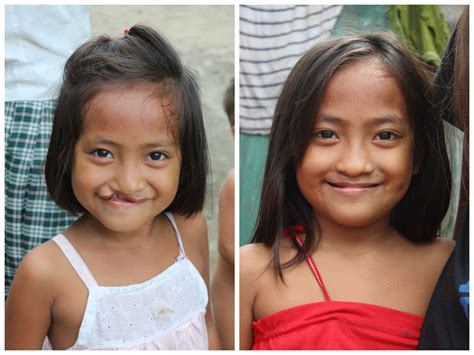 before and after philippines smile stories