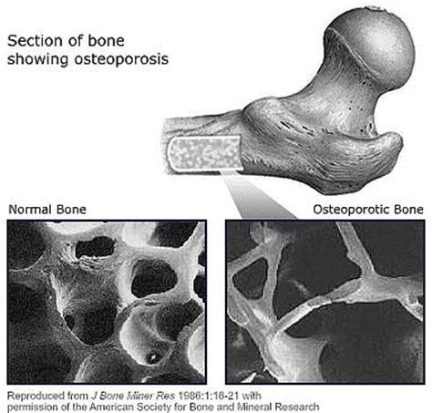 section of bone bone health and bone loss