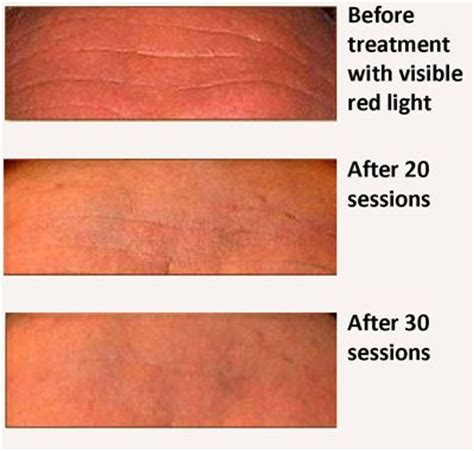 red light therapy l 43 best red light therapy before and after images on