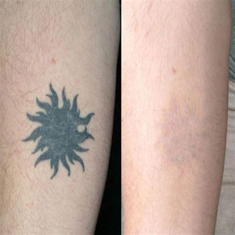 how effective is tattoo removal cream 72 best laserless removal effective