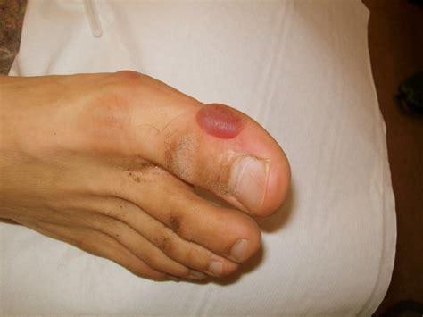la bobologie des pieds chez le coureur trail session