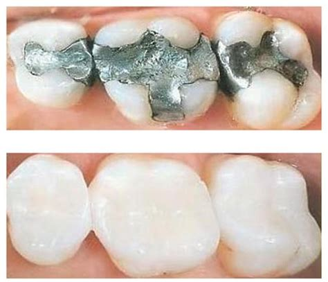 Mercury Filling Removal Detox by Nutrients To Support Detox Removal Of Mercury Fillings