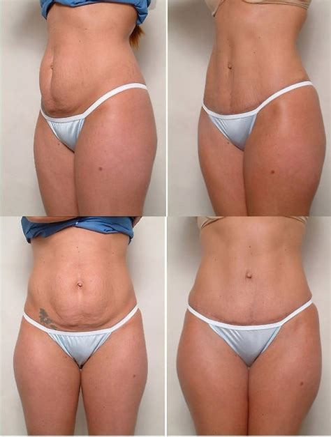 plastic surgery after c section 34 best images about tummy tuck on pinterest lower