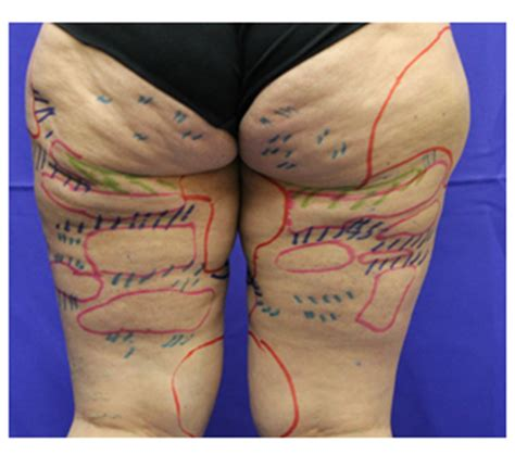 cellulite best treatment cellulite treatments that work best home most
