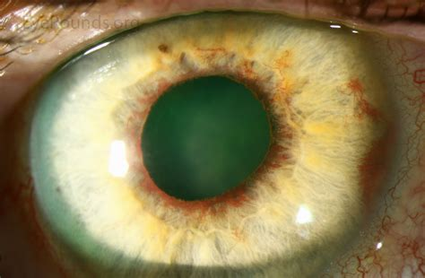 Of The by Rubeosis Iridis Or Neovascularization Of The Iris In Diabetes