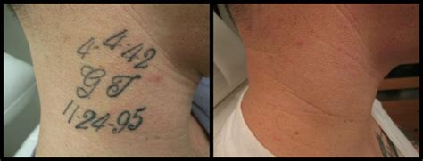 neck tattoo removal removal before and after photos from rethink the