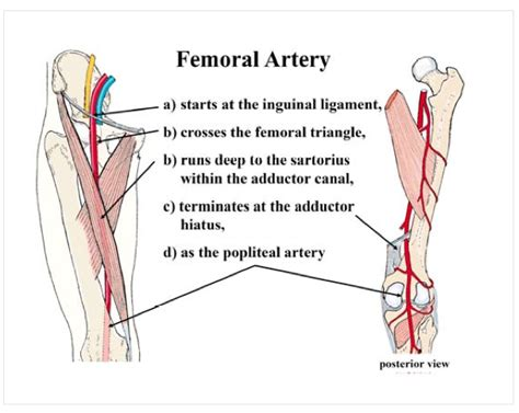 diagram of femoral artery 301 moved permanently