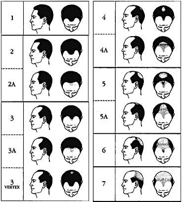 hamilton pattern hair loss about the hamilton norwood scale balding celebrities