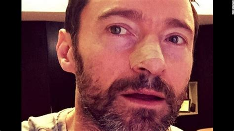 Hugh Jackman Was Stunned After Witnessing Brain Surgery another skin cancer for actor hugh jackman cnn