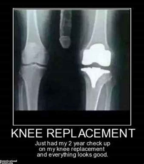 Knee Surgery Meme - the gallery for gt empty nest jokes