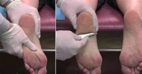 How Does Planters Fasciitis Last by Amazing Cure For Chronic Foot Plantar Fasciitis