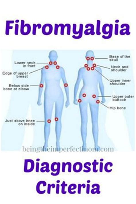 pressure points fibromyalgia diagram 32 best dermatomen images on physical therapy