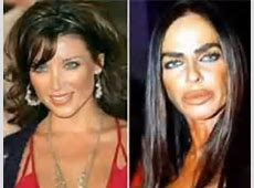 20 Best & Worst Celebrity Plastic Surgery Stories ... Hollywood Actors Body Transformation