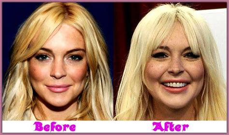 Lindsay Lohan Appendix Removed Resting Comfortably by Lindsay Lohan Plastic Surgery Pictures Lindsay Lohan