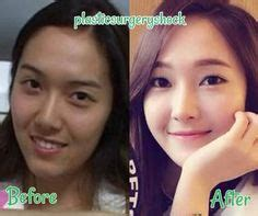 jessica jung before plastic surgery 1000 images about plasticsurgeryshock com on pinterest