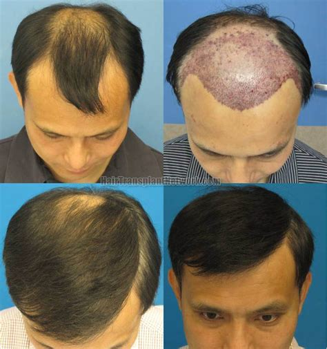 hair plugs for men hair transplant surgery surgical hair transplants photos