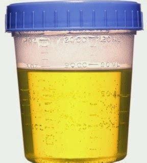 coffee colored urine kidney disease urine color gallery