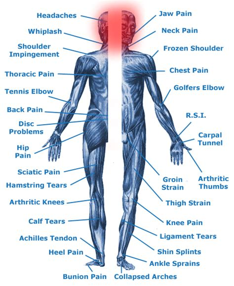 parts therapy tension headaches migraines helped by from