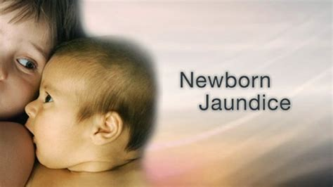 yellow coloration of the skin neonatal jaundice in newborn symptoms and treatment
