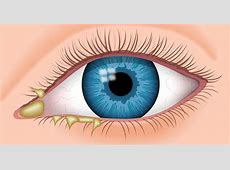 Eye Discharge - Causes, Types, Treatment Eyemed
