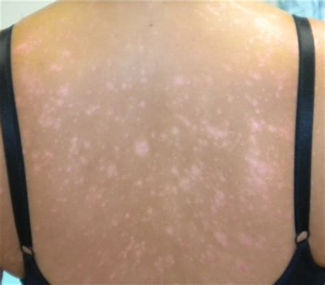 best treatment tinea versicolor pityriasis treatment healthy skin clinic