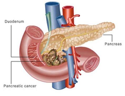 alimentazione tumore pancreas nel 2030 il tumore al pancreas diventer 224 seconda causa