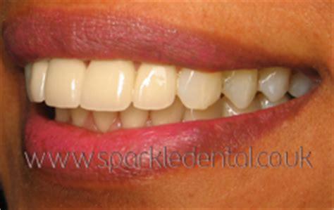 protruding teeth     sparkle dental