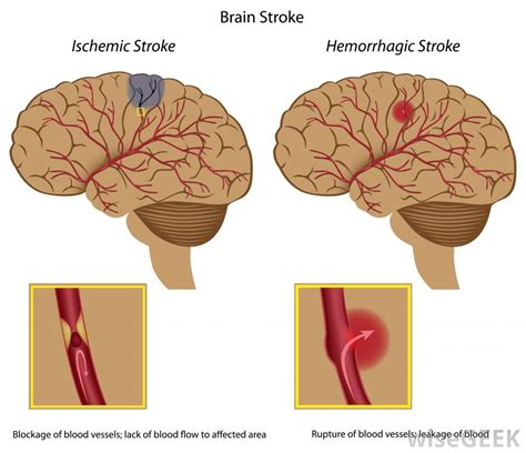 can a a stroke what happens after a stroke with pictures