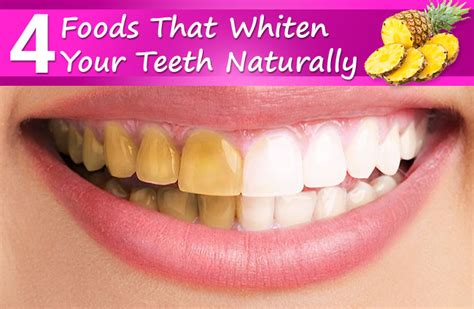 7 Foods To Avoid For Whiter Teeth by 4 Foods That Whiten Your Teeth Naturally
