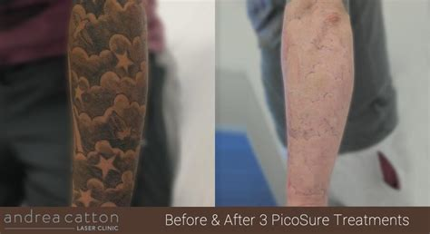 tattoo removal bolton andrea catton laser clinic salon in