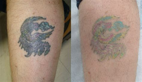 laser tattoo removal gone bad 100 removal wrong laser removal